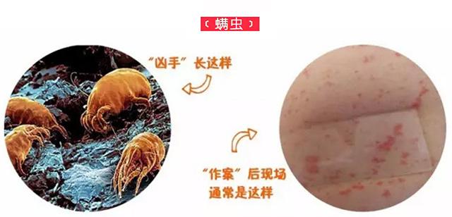 螨虫引发的皮肤问题