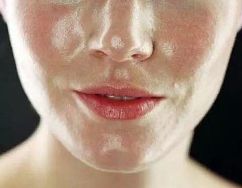 皮肤因为螨虫变得粗糙